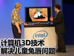 计算机3D技术解决兔唇问题